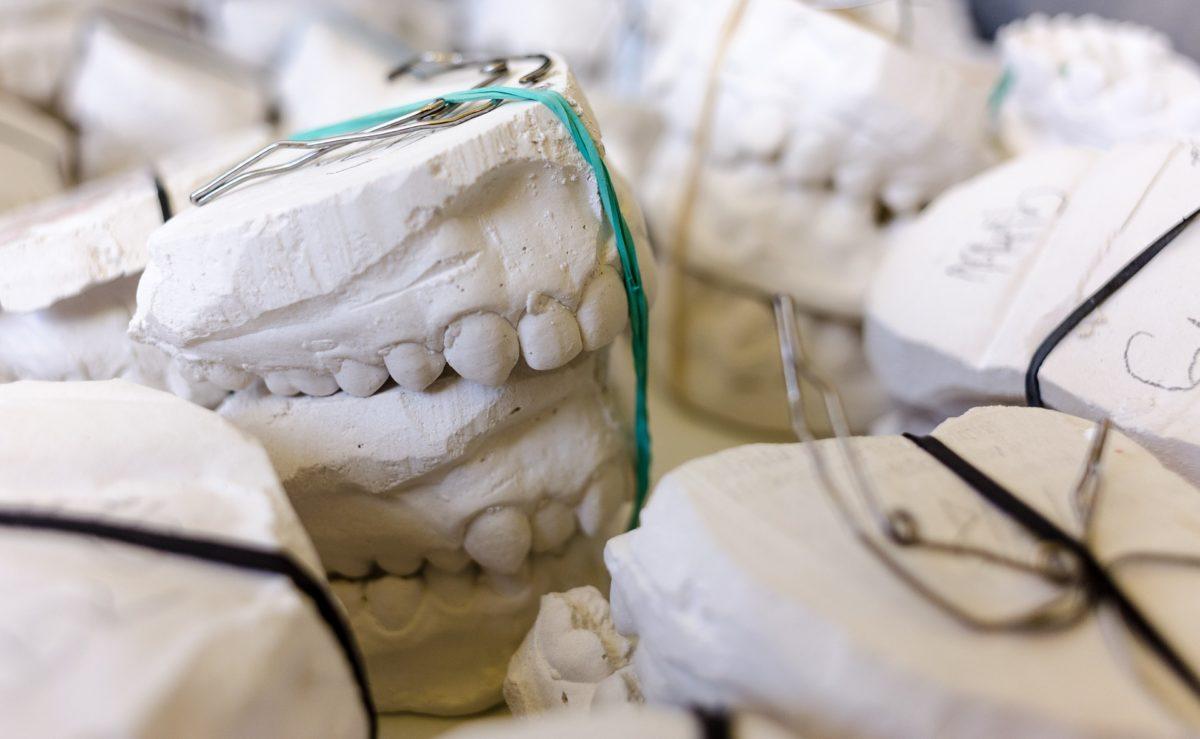 Zła droga odżywiania się to większe niedostatki w zębach natomiast dodatkowo ich zgubę